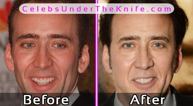 Nick Cage Before After Plastic Surgery Pics #celebsundertheknife #celebs #celebrity #plasticsurgery #celebritysurgery