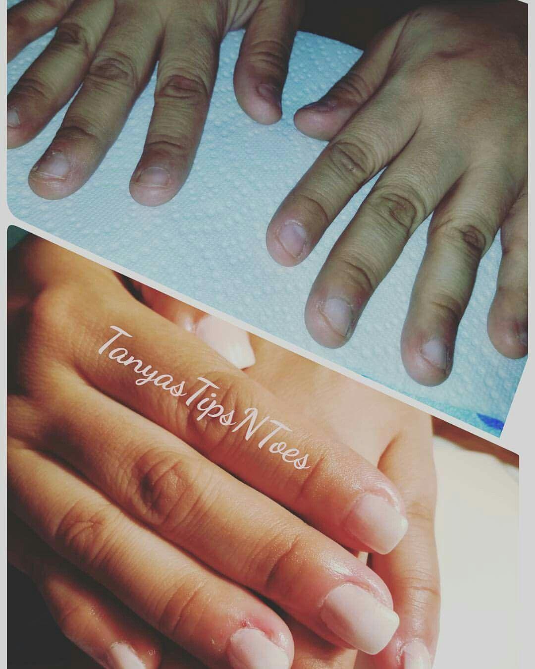 Short bitten nails BEFORE & AFTER Glitz & Glam