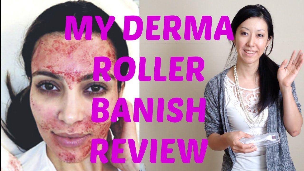 banish derma roller
