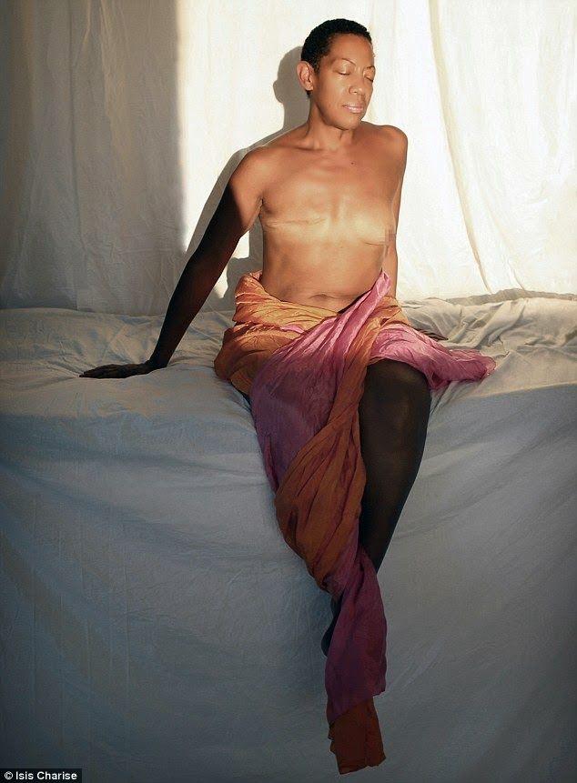 Breast cancer nude photos photo