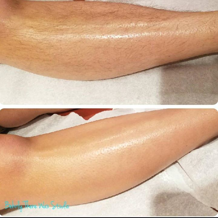 Before And After Leg Wax Look How Smooth You Can Be Dayton