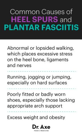 112a470367 Heel Spur: Causes, Symptoms and 7 Natural Solutions | Dr. Axe ...