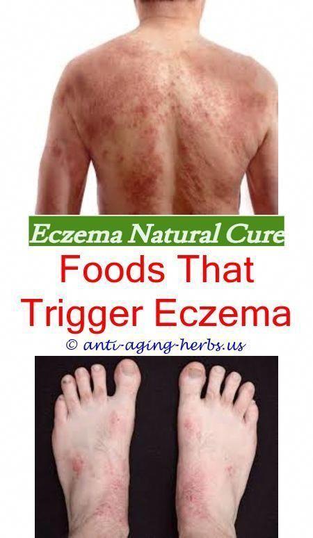 Is Coconut Oil Good For Eczema Childs Farm Eczema Review