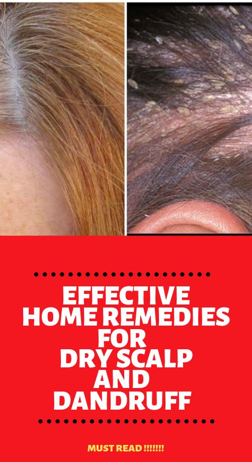 004195890c4f06e9d17c0a308ded8742 - How To Get Rid Of Red Spots On Scalp