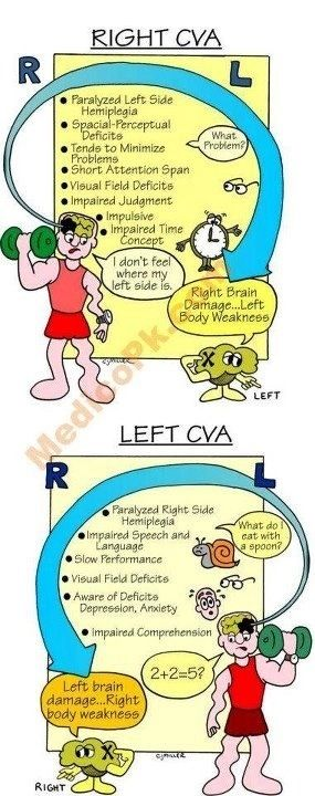 Right Cva Vs Left Cva Nursing Study Nursing School Studying Nursing Students