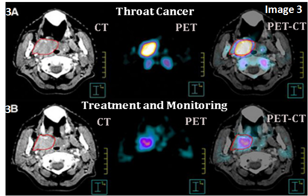 PET scan cost 50 less from best diagnostic centres
