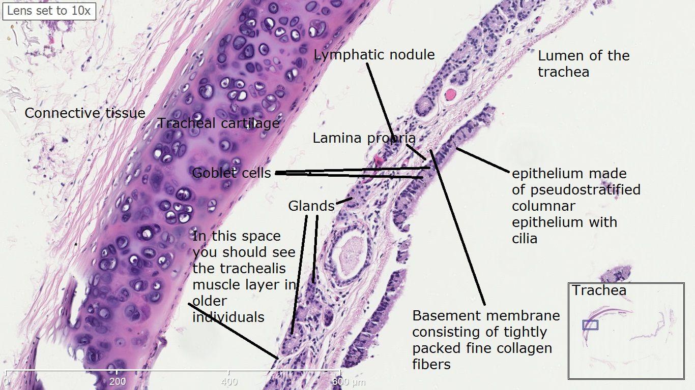Trachea and Esophagus Histology | TracheaHistology,_点力图库 ...