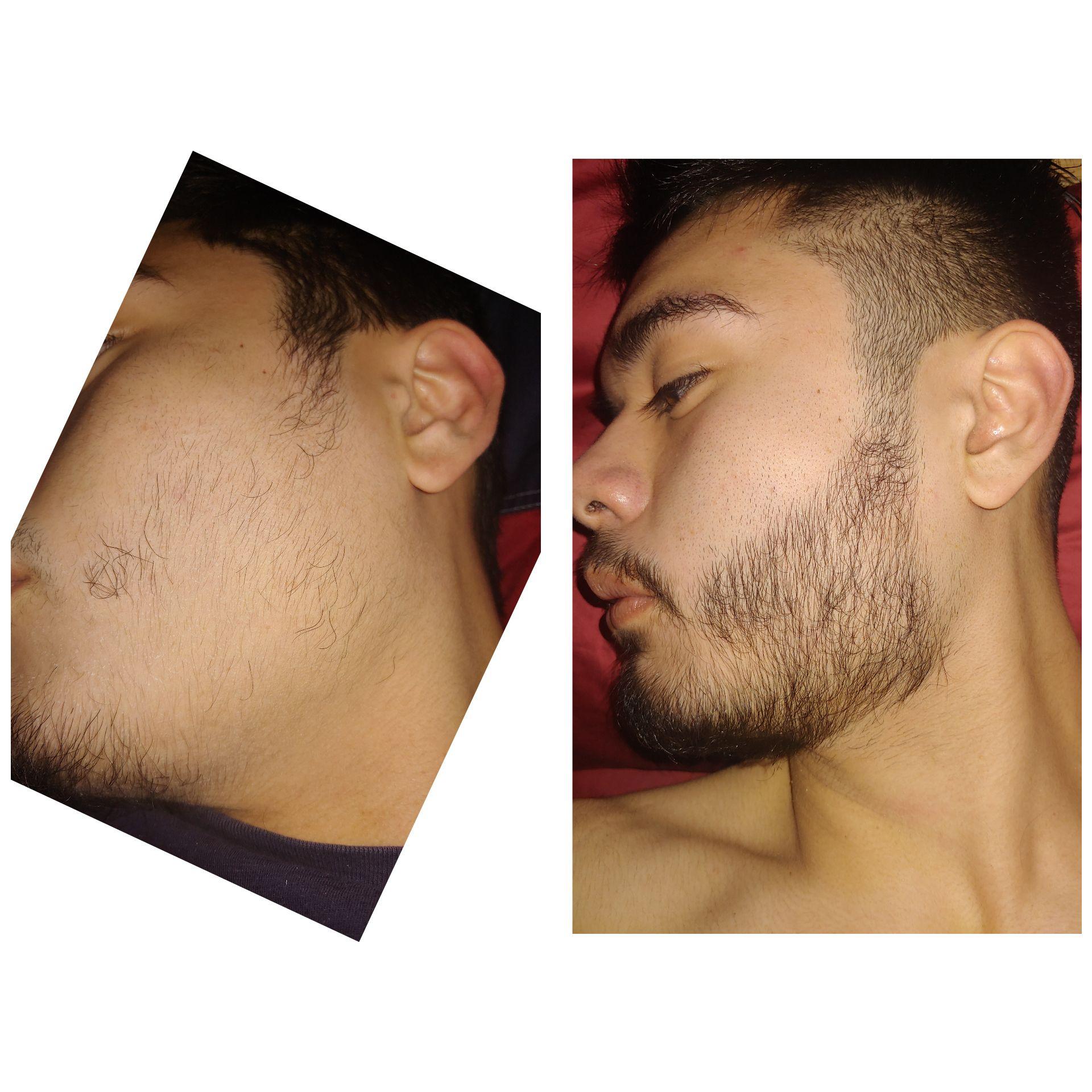 Spots rogaine bald for beard Bald Spot