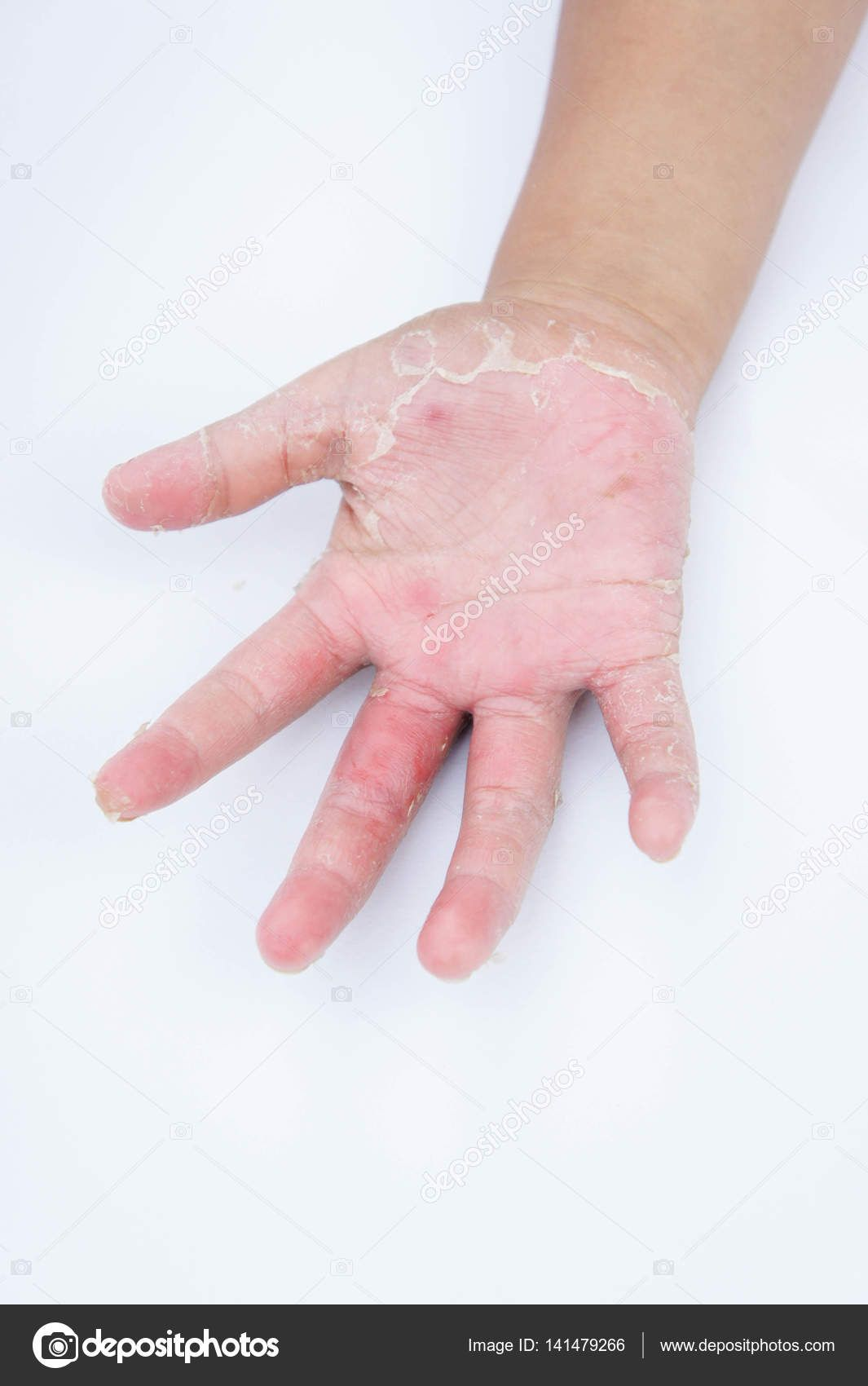 Dry hands, peel, Contact dermatitis, fungal infections, Skin inf ...
