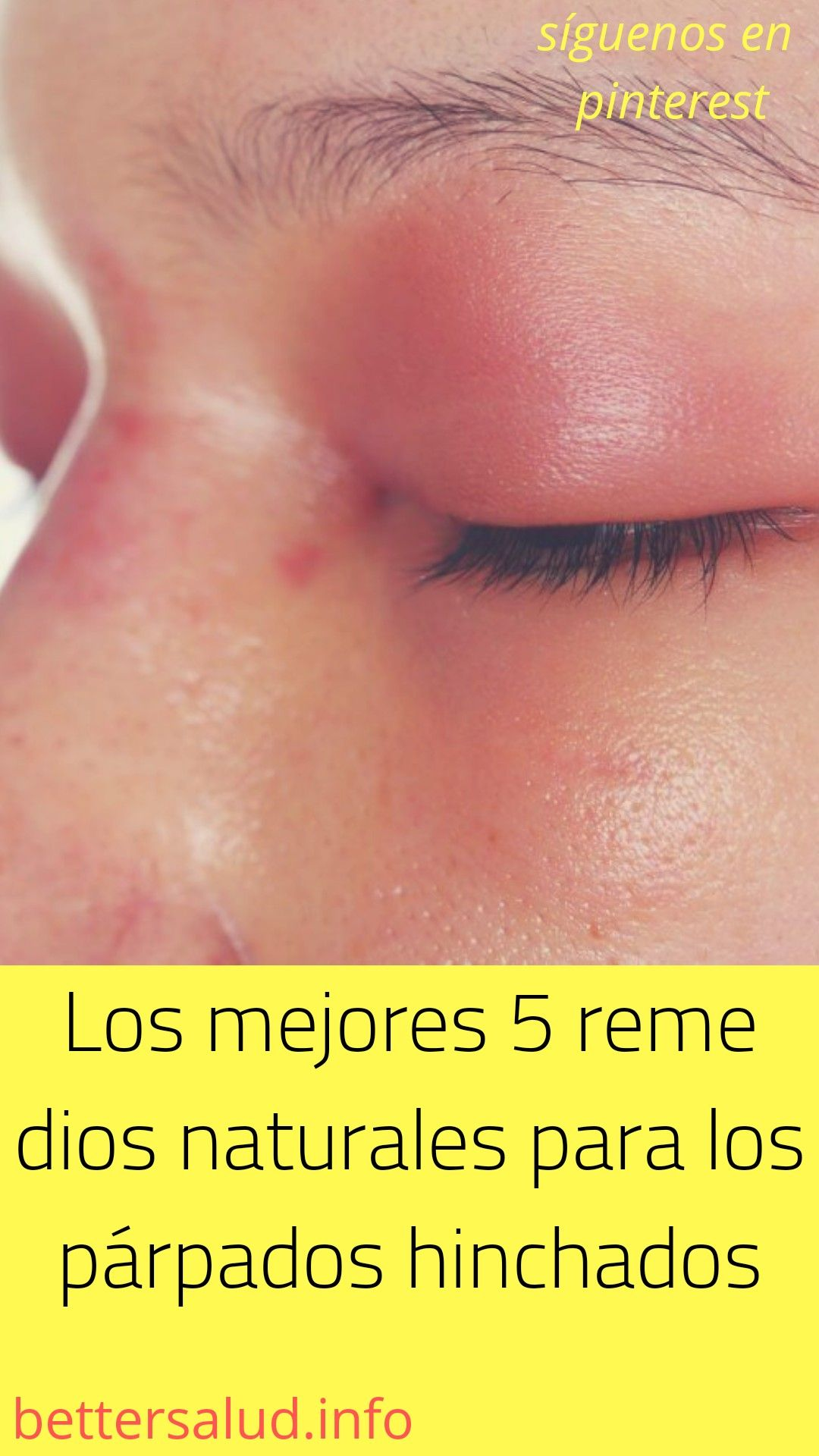 Pin On Tratamiento Facial