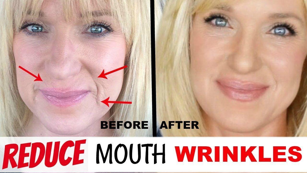 004f56c12d81ff4b0832ddce52924b10 - How To Get Rid Of Deep Wrinkles On Upper Lip