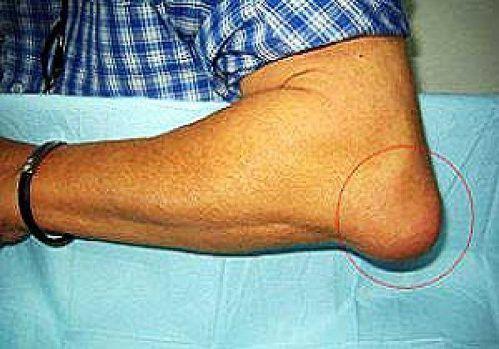 Лечение остеохондроза припараты