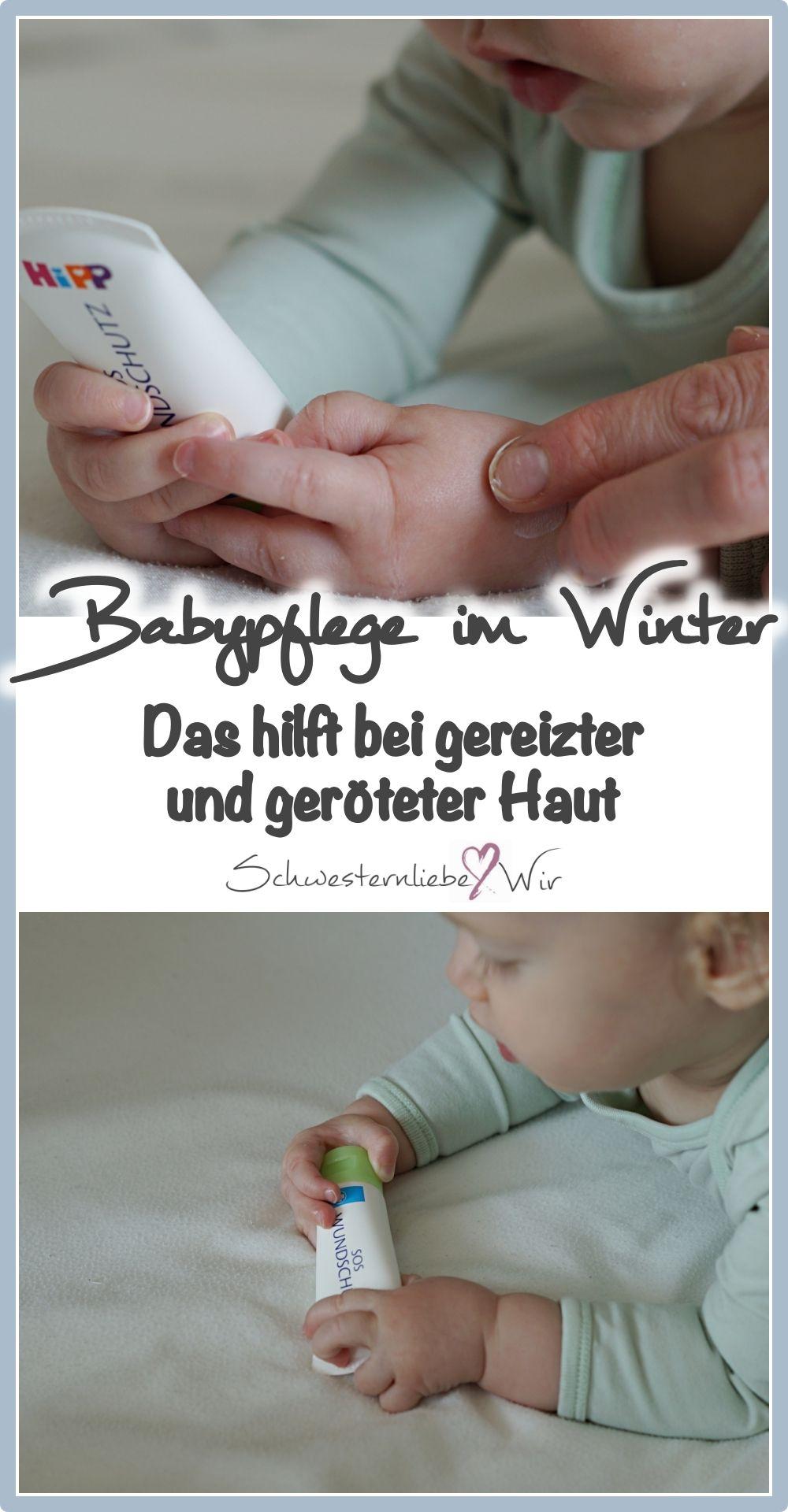 Baby Unsere Losung Fur Gerotete Und Gereizte Haut Mit Hipp Babysaft Sos Wundschutz Baby Babypflege Haut