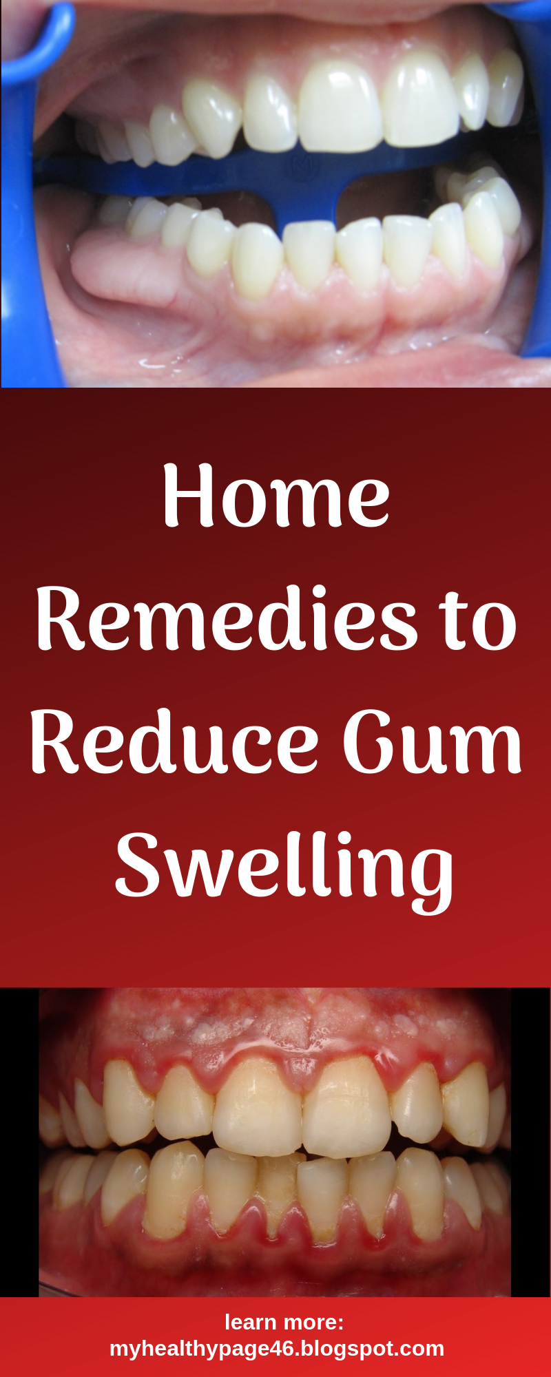 Home Remedies To Reduce Gum Swelling Swollen Gum Gingivitis Remedies Swollen Gums Remedy