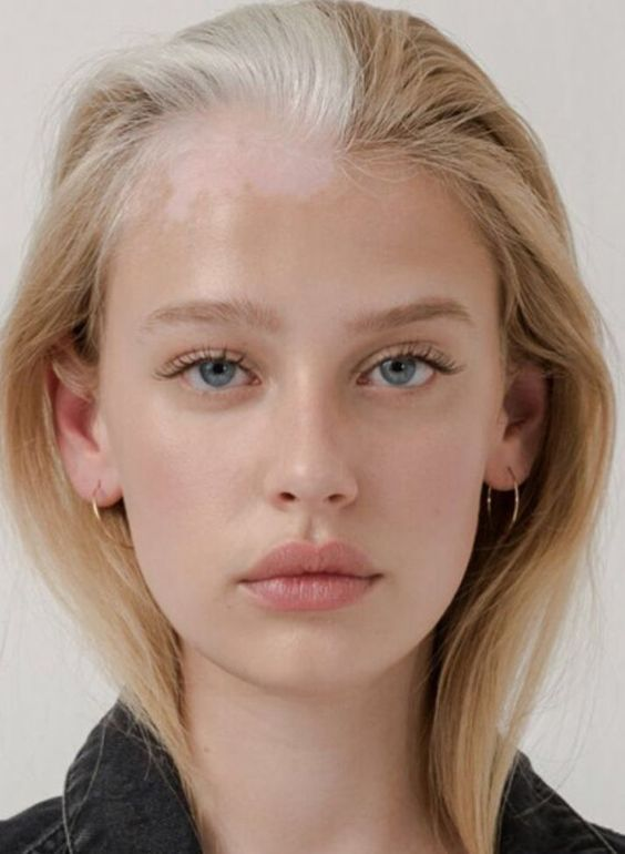 Pin By Sana Arab On Beautiful You Vitiligo Beauty Hair Care Tips