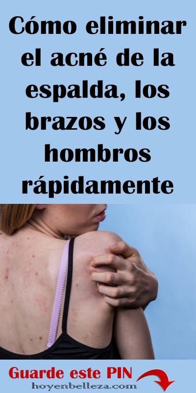 Cómo Eliminar El Acné De La Espalda Los Brazos Y Los Hombros Rápidamente Skin Care Regimen Body Care Skin