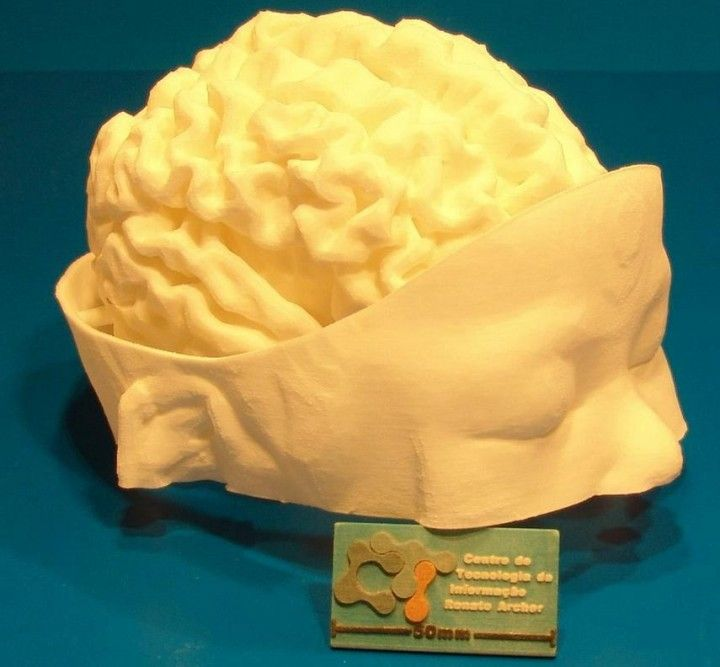 Neurosurgeons May Use 3d Printed Brain Replicas To Save Children In Near Future The Tech Journal 3d Printing 3d Printing Business Brain Surgery