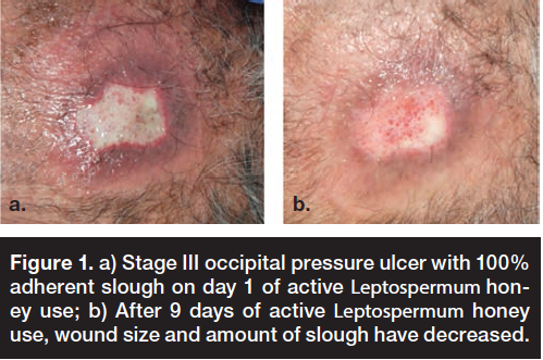 Stage III occipital pressure ulcer with 100 adherent