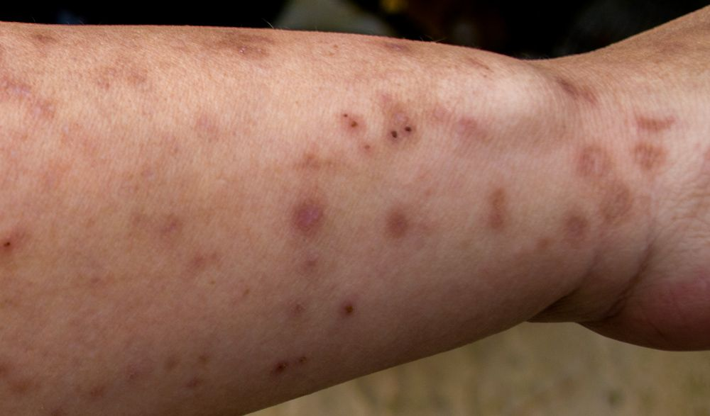 What Do Bed Bug Bites Look Like On Adults And Children Medical