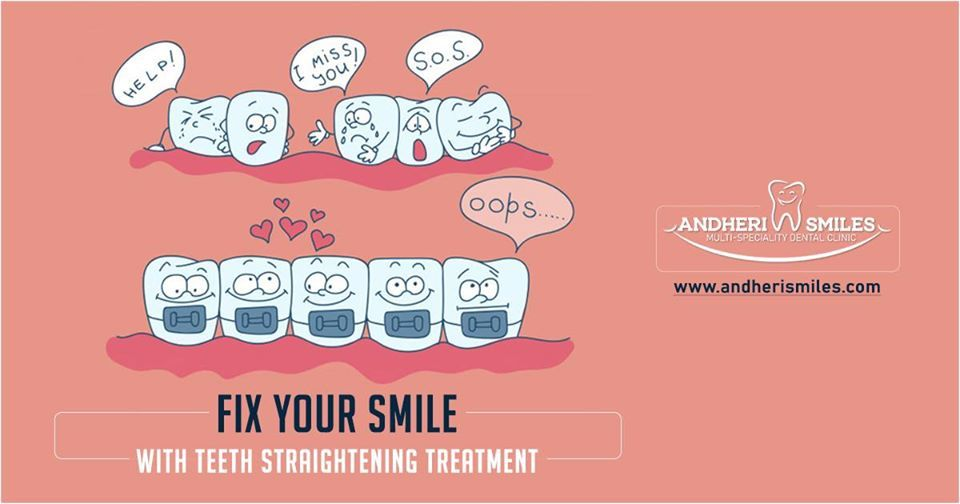 Want a Perfect Smile? Fix Your Crooked Smile at