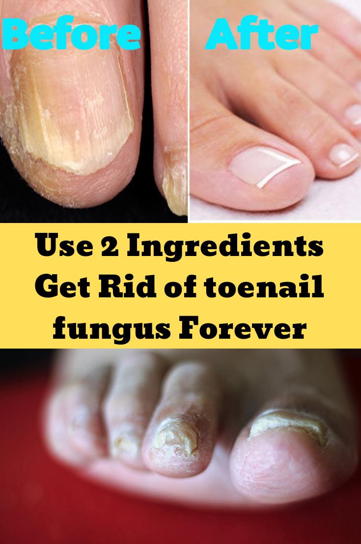 Use 2 Ingredients Get Rid Of Toenail Fungus Forever Nail Fungus Treatment Toenails Toenail Fungus Nail Fungus Cure