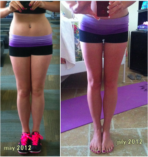 170-weight-loss-before-after-women-legs | Vegan ...