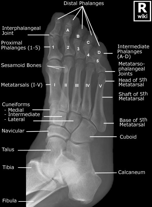 Radiographic Anatomy - Foot Oblique. Very interesting to look at if ...