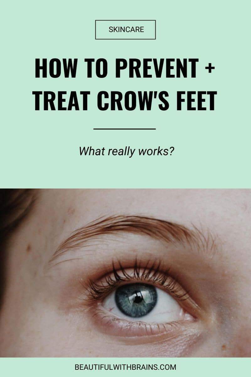 Crows feet how to prevent and treat them crows feet
