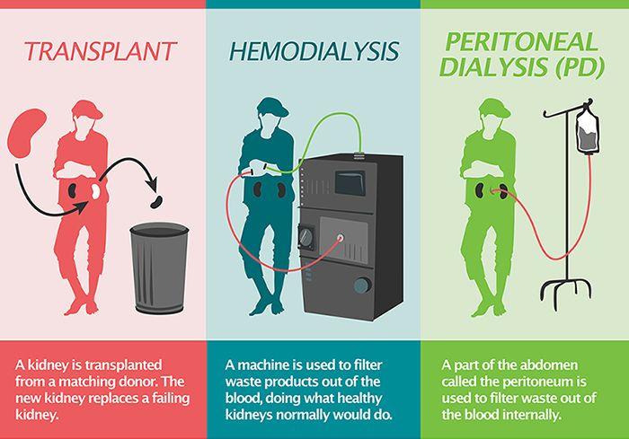 Peritoneal dialysis vs hemodialysis