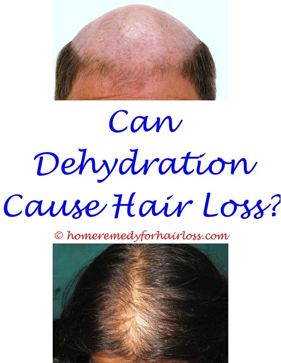 t gel shampoo cause hair loss - kerastase densifique shampoo ...