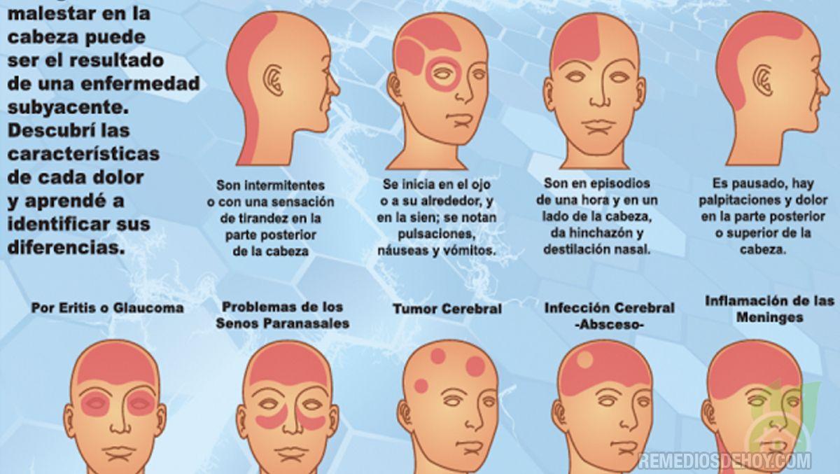 Dolor en la parte superior de la cabeza y vómitos