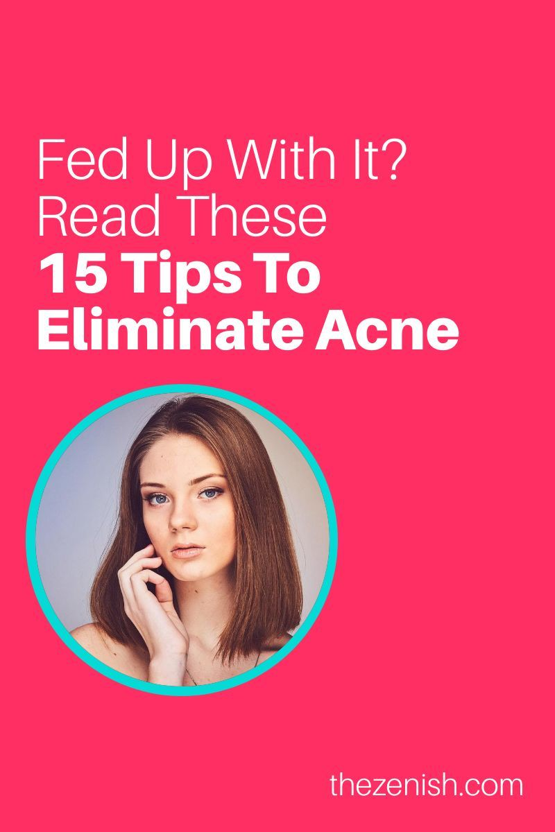 Photo of 15 Tried-and-true ways to clear up acne fast