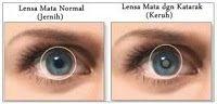 Penyebab mata katarak dan obat cara menyembuhkannya - Mata katarak adalah salah satu penyakit mata dengan tanda-tanda yang sangat tampak. Yaitu bagian lensa mata yg seharusnya bening, menjadi agak keruh atau ada bercak putih seperti awan. Meskipun awal-awal gejalanya tidak tampak dan penderitanya tidak merasakan sakit ataupun nyeri, namun katarak bisa tumbuh seiring usia dan nanti