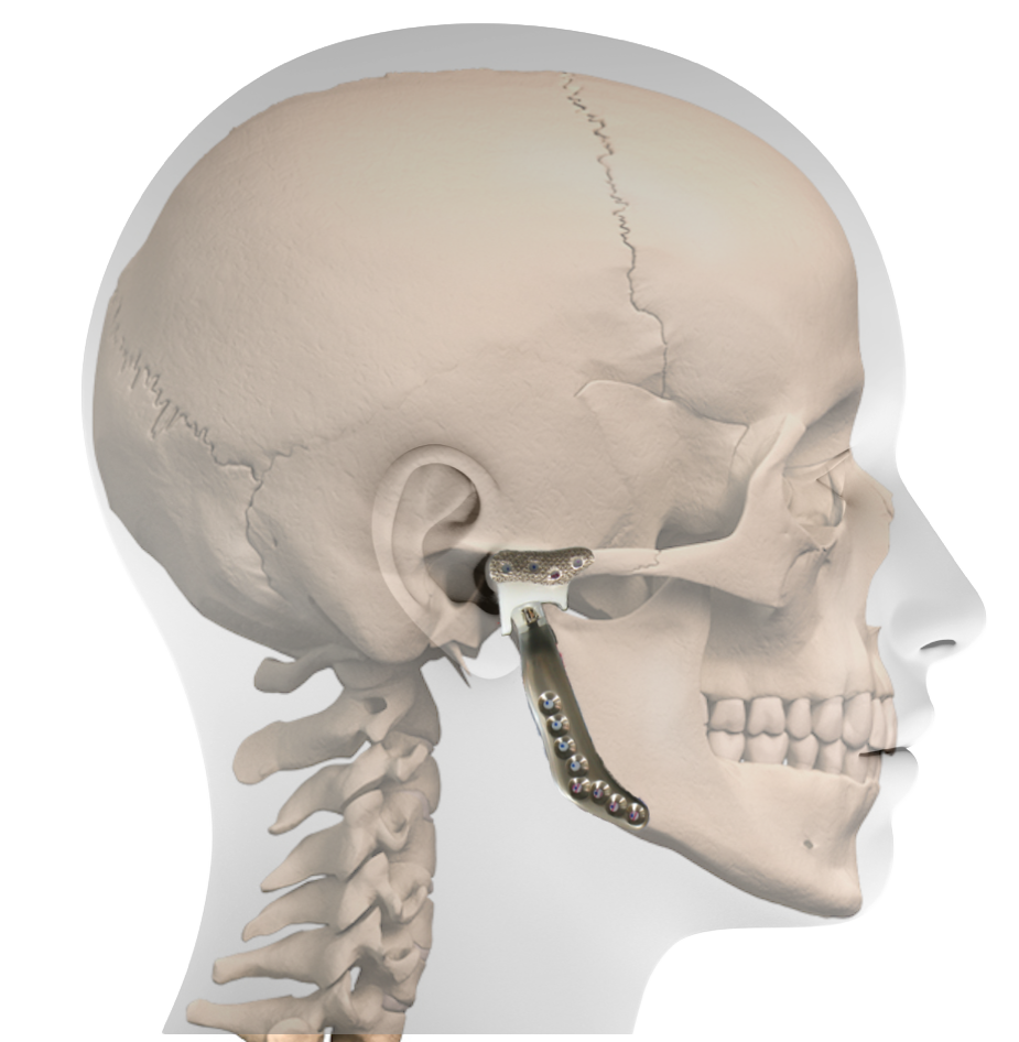 Total Temporomandibular Joint (TMJ) Replacement - Larry M. Wolford ...
