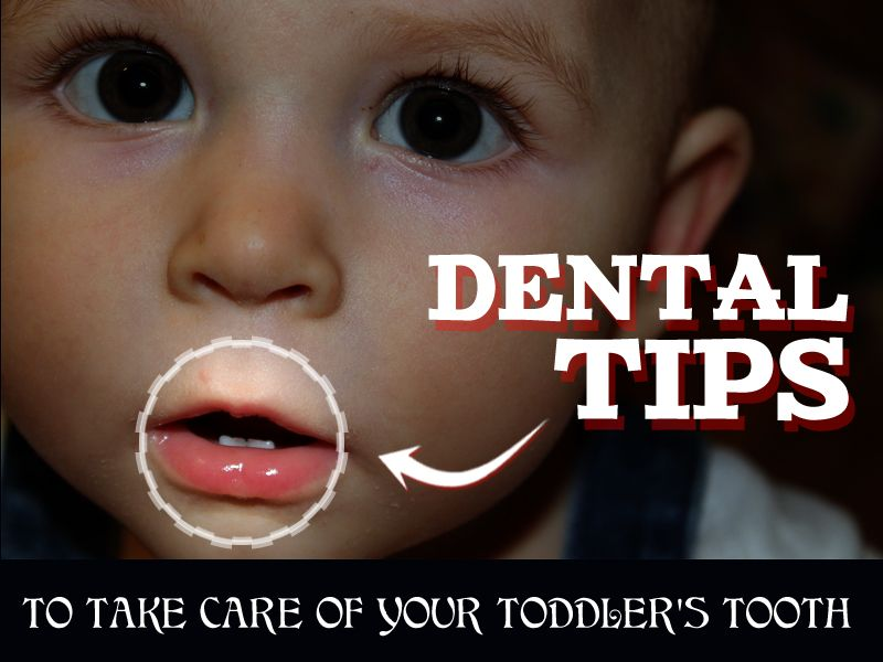Dental tips to take care of your toddlers tooth limit