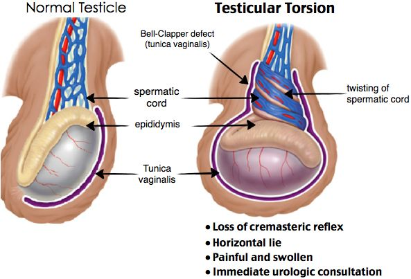 Image result for Testicular torsion