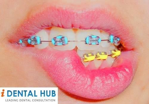 Average cost of braces for teeth dental care identalhub average cost of braces for teeth solutioingenieria Image collections