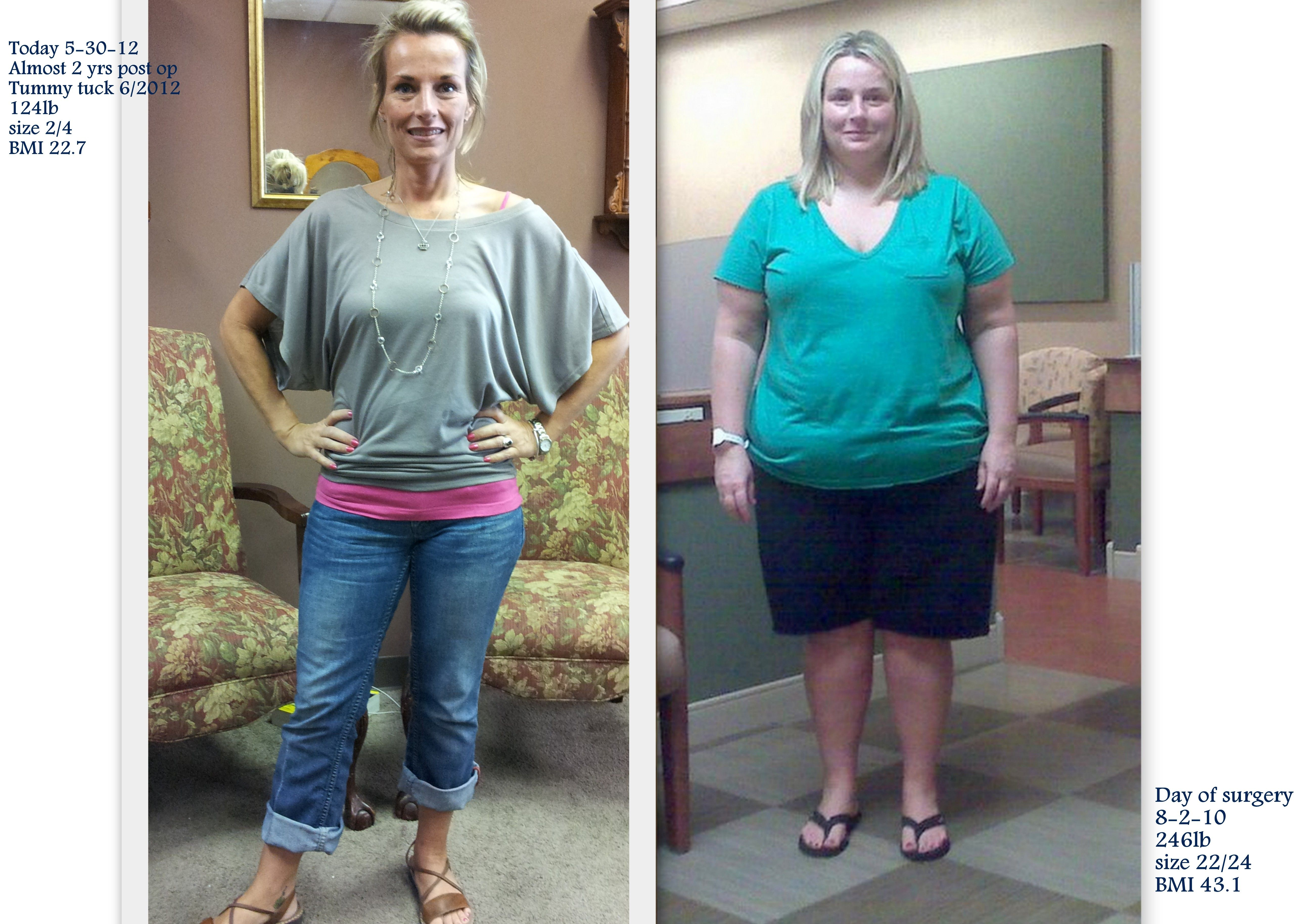 Before And After Roux En Y Gastric Bypass And After Tummy Tuck God