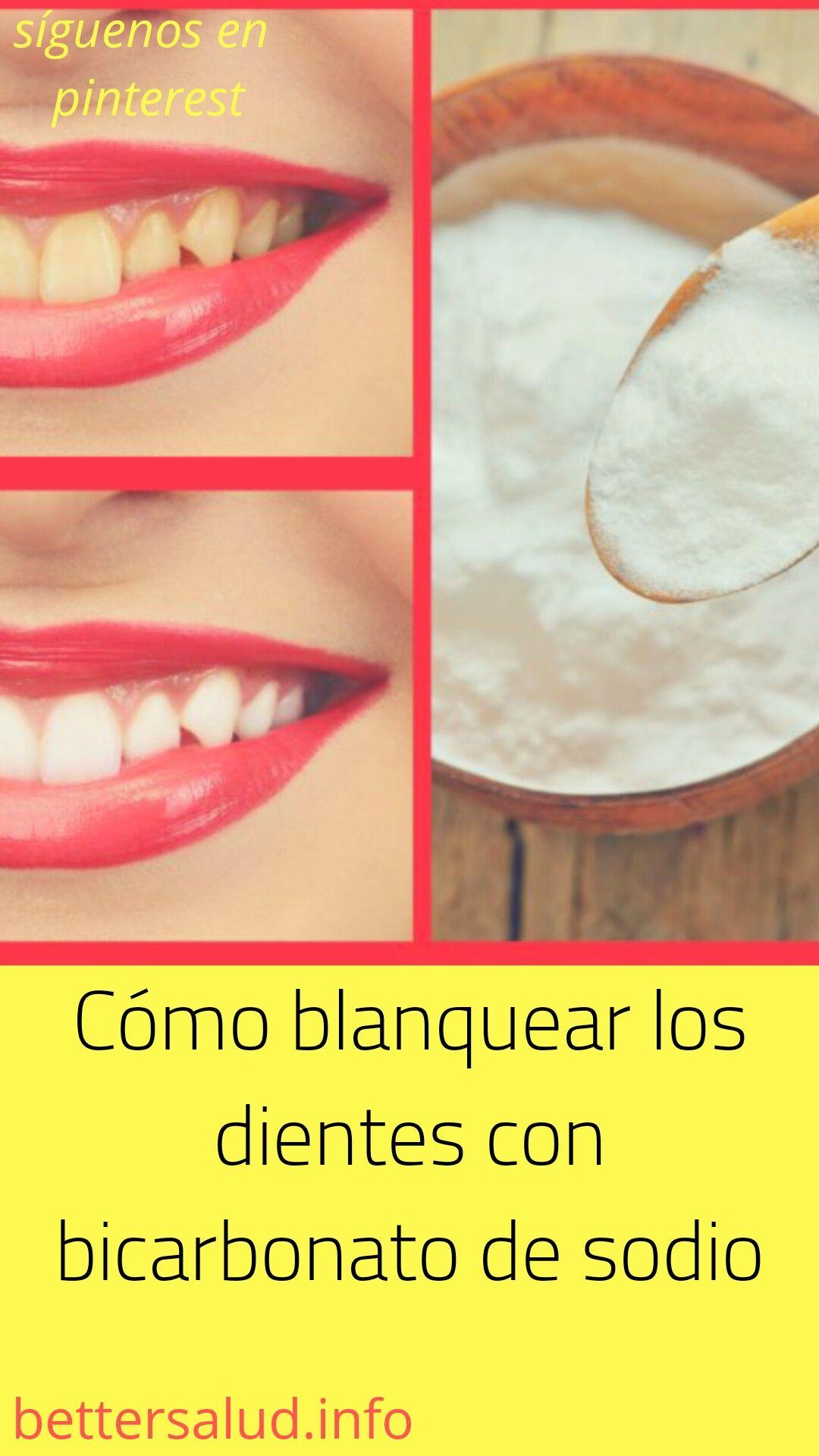 como blanquear los dientes con bicarbonato de sodio
