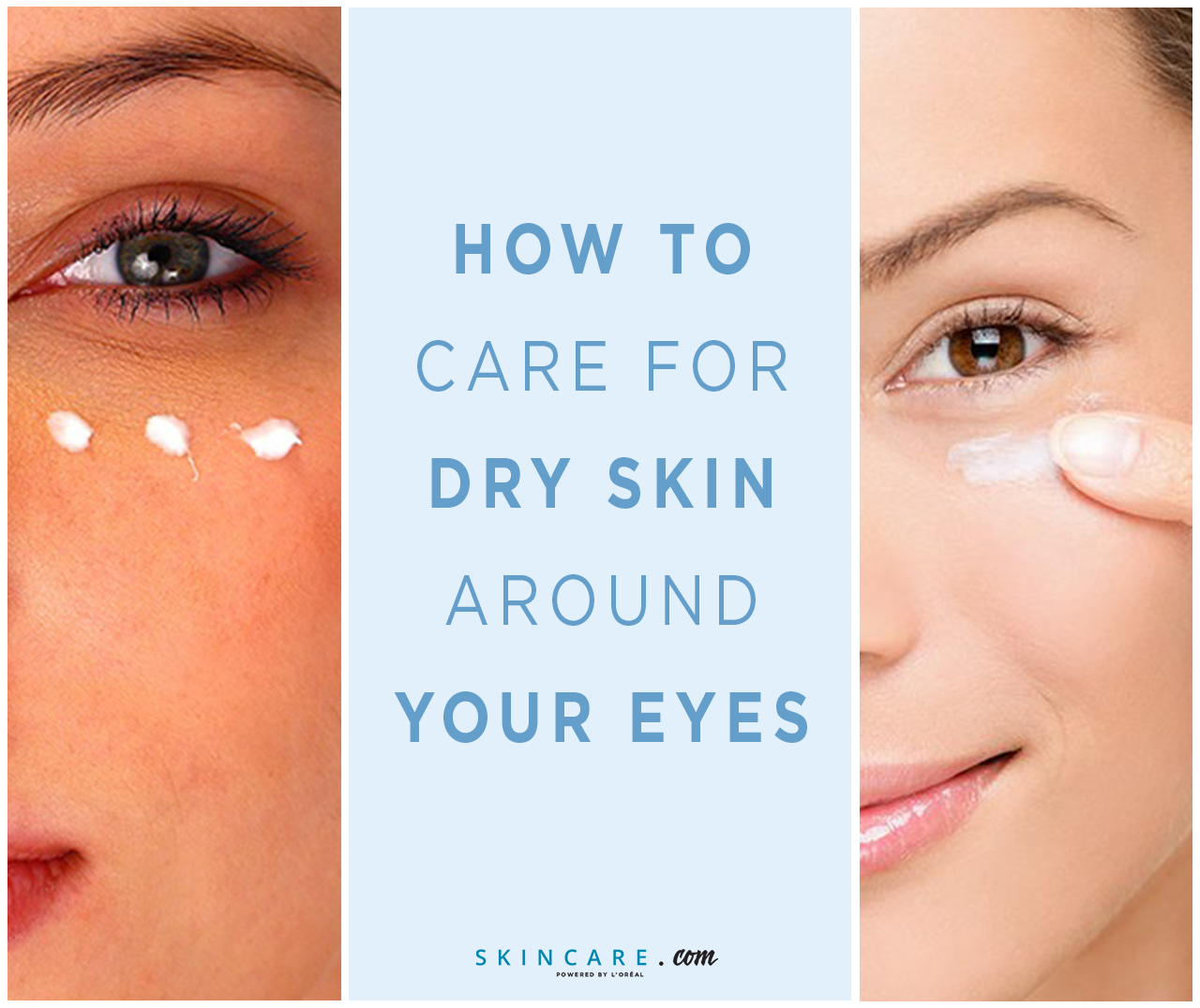 Because the skin around your eyes is so delicate and prone to early
