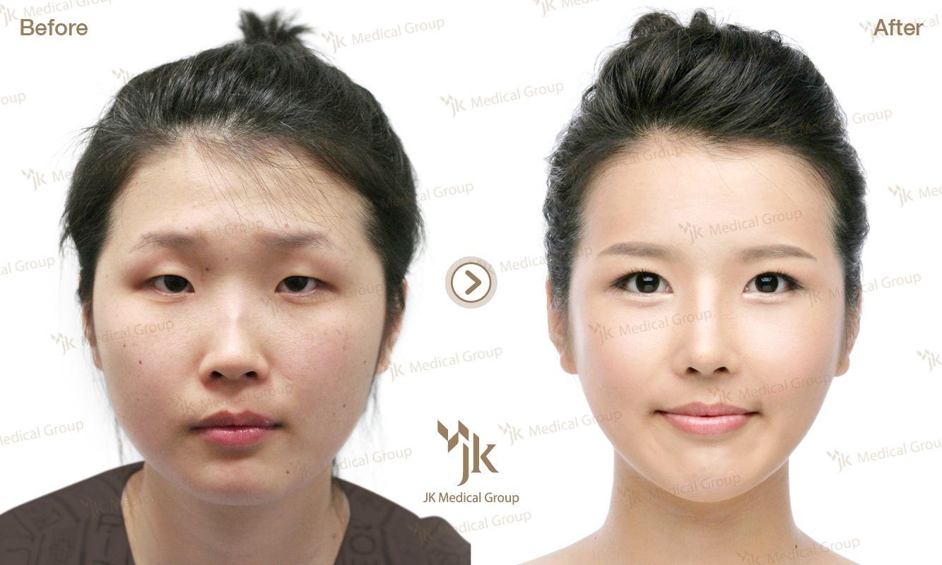 Jk plastic surgery in south korea korean plastic surgery best plastic surgery in korea extreme plastic