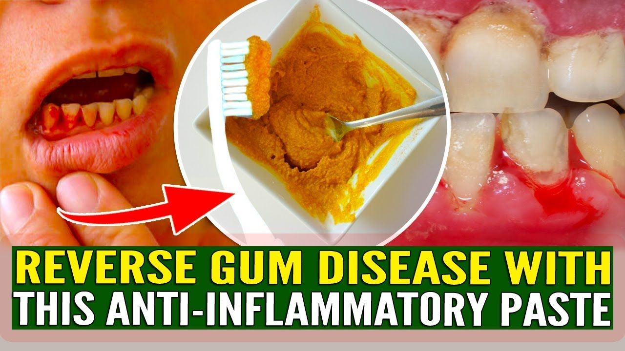 Dental health this antiinflammatory paste will reverse