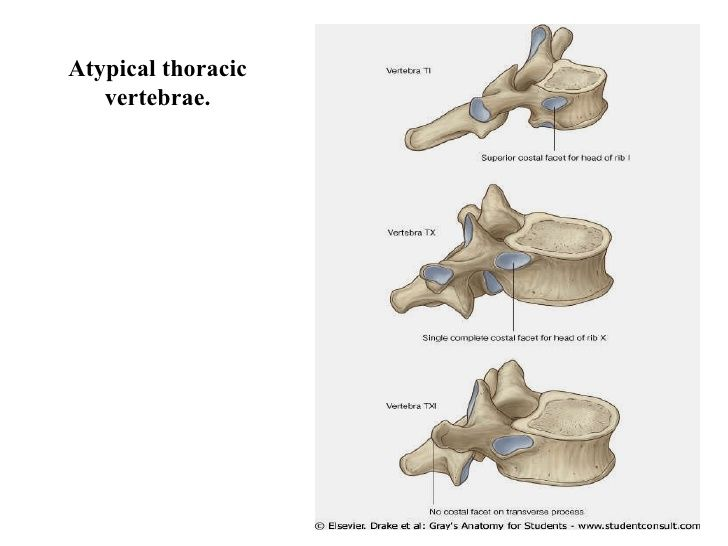 Atypical Thoracic Vertebra Google Search Anaesthetics Anatomy