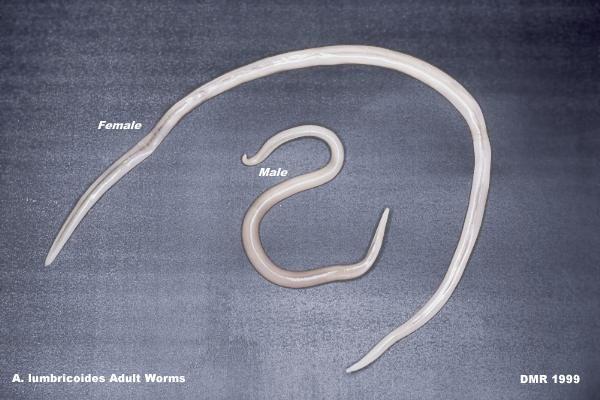 Pinworms ascaris lamblia. A pinworm férgek viszketnek reggel