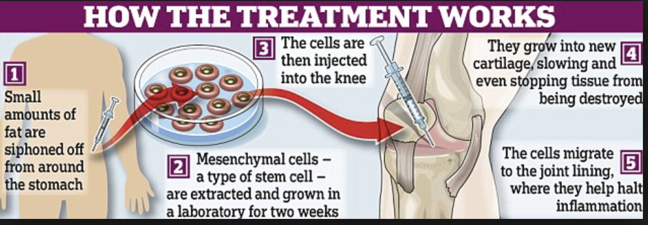 Stem cell therapy arthritis of the knee  Today most stem