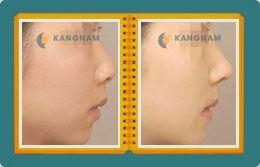 HÌnh ảnh trước và sau nâng mũi