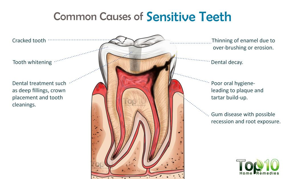 00a61b127133ffdda7d05c4f0058e1c2 - How To Get Rid Of Tooth Pain After A Filling