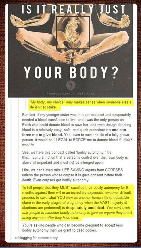 """""""You're asking people who can become pregnant to accept less bodily autonomy than we grant for dead bodies"""""""