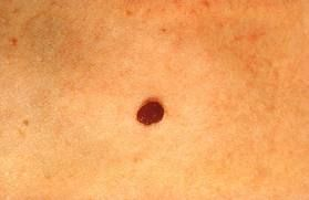 Pin On Em S Inspirational Skin Cancer Board