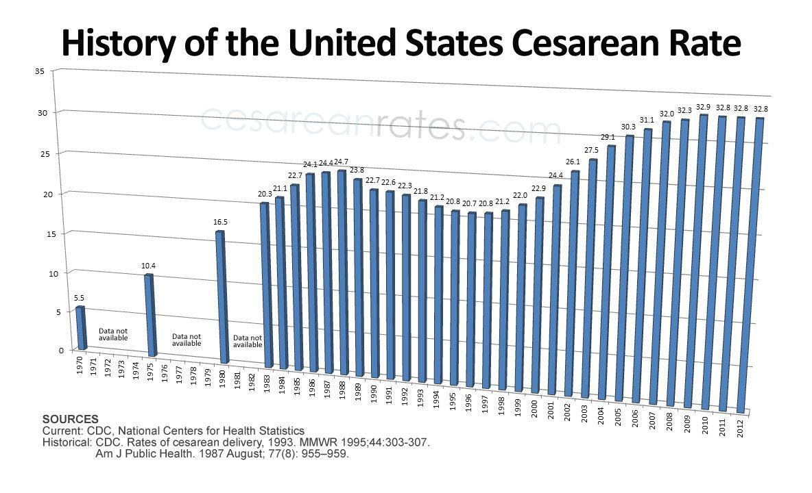 U S National Cesarean Rate History 1970 2012 Birth Labor Cesarean Health Statistics